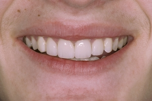 Robert S Grey Tooth Crown After 0053