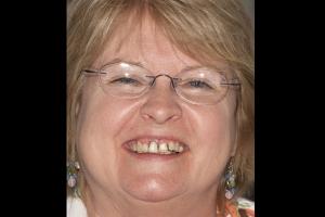 Roberta F Grey Tooth Crown  Before 0027