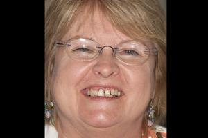 Roberta F Partial Denture  Before 0027b