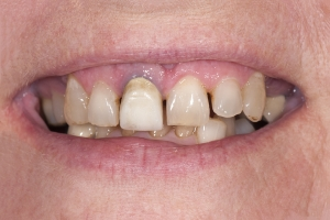 Roberta S Partial Denture  Before 0011 2