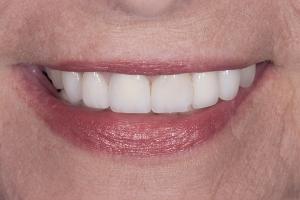 Roberta S Partial Denture After 7829