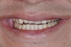 Roger Implant Bone Graft Bone S B4 6784