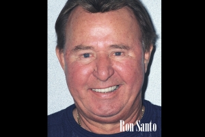 Ron Santo  Veneers & Crowns For Men F Post J&M003