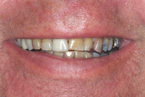 Ron Santo Veneers & Crowns For Men S B4 J&M007