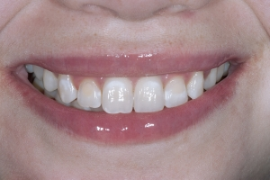 Rosa Teeth Whitening S Post 8428
