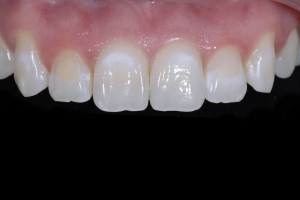 Rosa Teeth Whitening X121 Post 8432