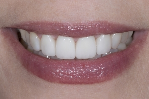 Rossana Gum Graft S Post 3969