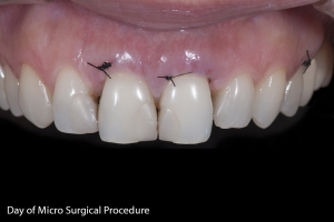 Rossana Gum Graft Z2 Blk Sutures 1867