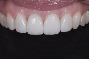 Rossana Gum Graft Z4 Post 3971
