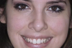 Roxanna GUMMY SMILE F Post 6698 3