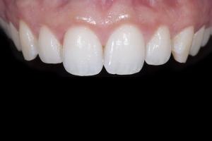 Roxanna Gummy Smile X121 Post _DSC6701