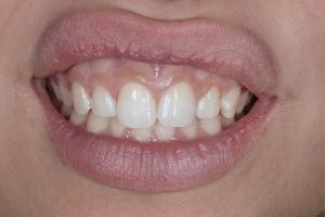 Roxanna Gummy Smile S B4_DSC0150