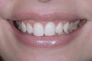 Roxanna Gummy Smile S Post _DSC6705