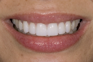 Sandra Veneers & Whitening S Post 037