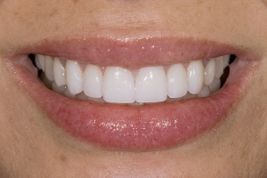 Sandra Veneers s Post 037
