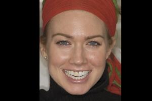 Dark Grey Dead Tooth Treatment - Advanced Cosmetic Dentistry