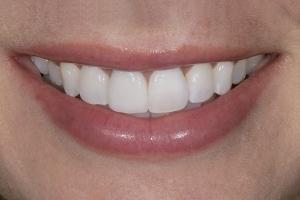 Sarah S Grey Tooth Crown After 023