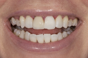 Sarah Grey Tooth Crown S B4 029