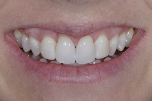 Sarah Veneers As Retainers S B4 8774