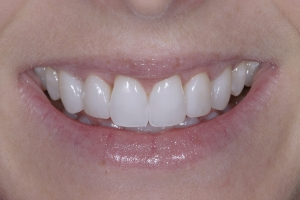 Sarah Veneers As Retainers S Post 9112 2