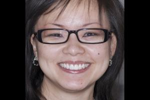 Sharon-Instant-Orthodontics-F-POST-0301-copy