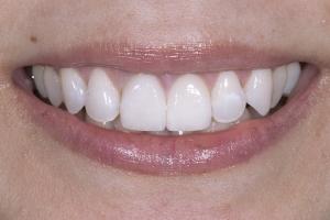 Sharon Instant Orthodontics S B4 _DSC0300