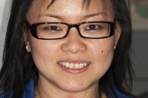 Sharon Instant Orthodontics F B4 0066