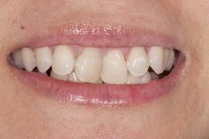 Sharon Instant Orthodontics S B4 _DSC0061