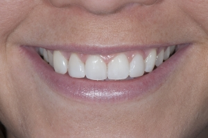 Shelby S5 Diastema After 0264