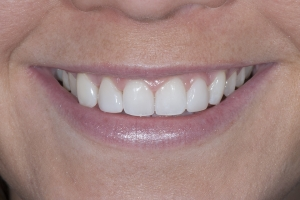Shelby S Whitening & Bonding After 0264