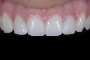 Shelby Clear Aligners X Space4 _DSC0975