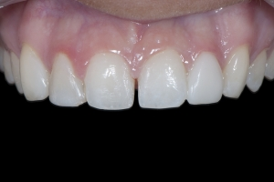Shelby Clear Aligners X space2 _DSC9533