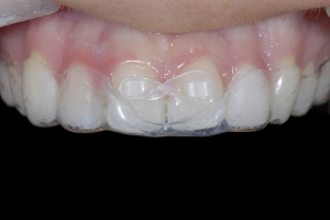 Shelby Clear Aligners X Space3 _DSC9584