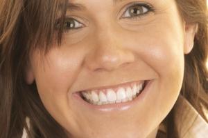 Shelby Teeth Whitening F Post 0078 b