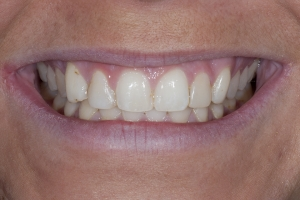 Shelby Teeth Whitening S B4 9242