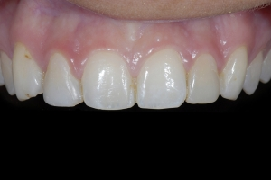 Shelby Teeth Whitening X Space1 9250