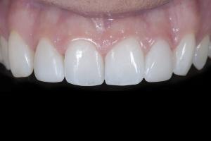 Shelby Teeth Whitening X121 Post 0273