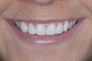 Shelby Teeth Whitening S Post 0264