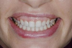 Sheri Gummy Smile S B4 7727