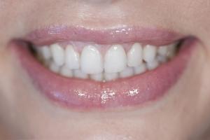 Sheri Gummy Smile S Post 8271