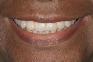 Shirleen Implant Bridge S Post 0154 b