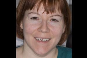 Stacy Broken Tooth F B4 _DSC0233