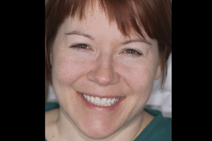 Stacy Broken Tooth F Post _DSC0153