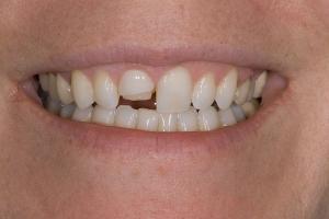 Stacy Broken Tooth S B4 _DSC0231_1