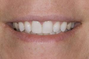 Stacy Broken Tooth S Post_DSC0336