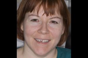 Stacy Crown Lengthening F B4 _DSC0233