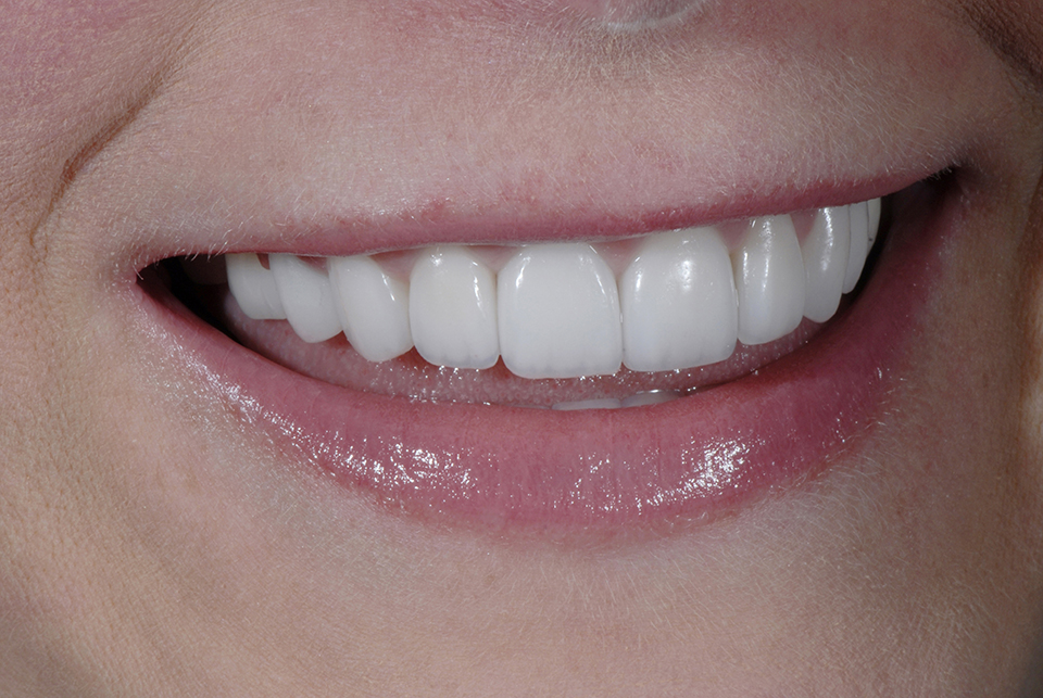 Molar Bridges Back Teeth - Advanced Cosmetic Dentistry