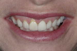 Susan Frenectomy Papillae S B4 0229