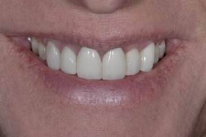 Susan Laser Frenectomy S  Before 0016
