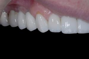 Susan-Implant-Bridge-Front-X121-Post-1261